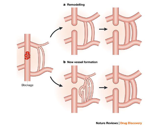 Coronary Collateral Angiogenesis